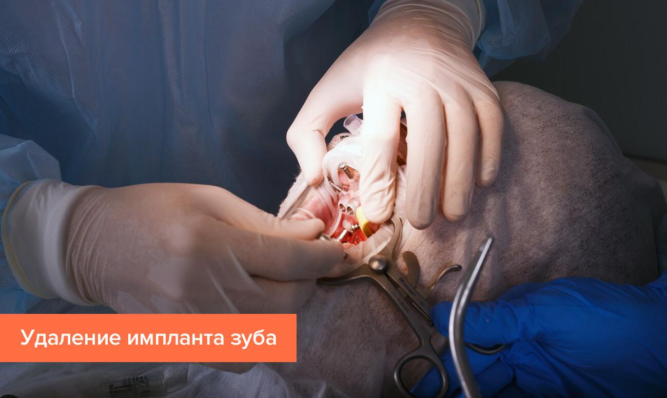 Фото процесса удаления импланта зуба