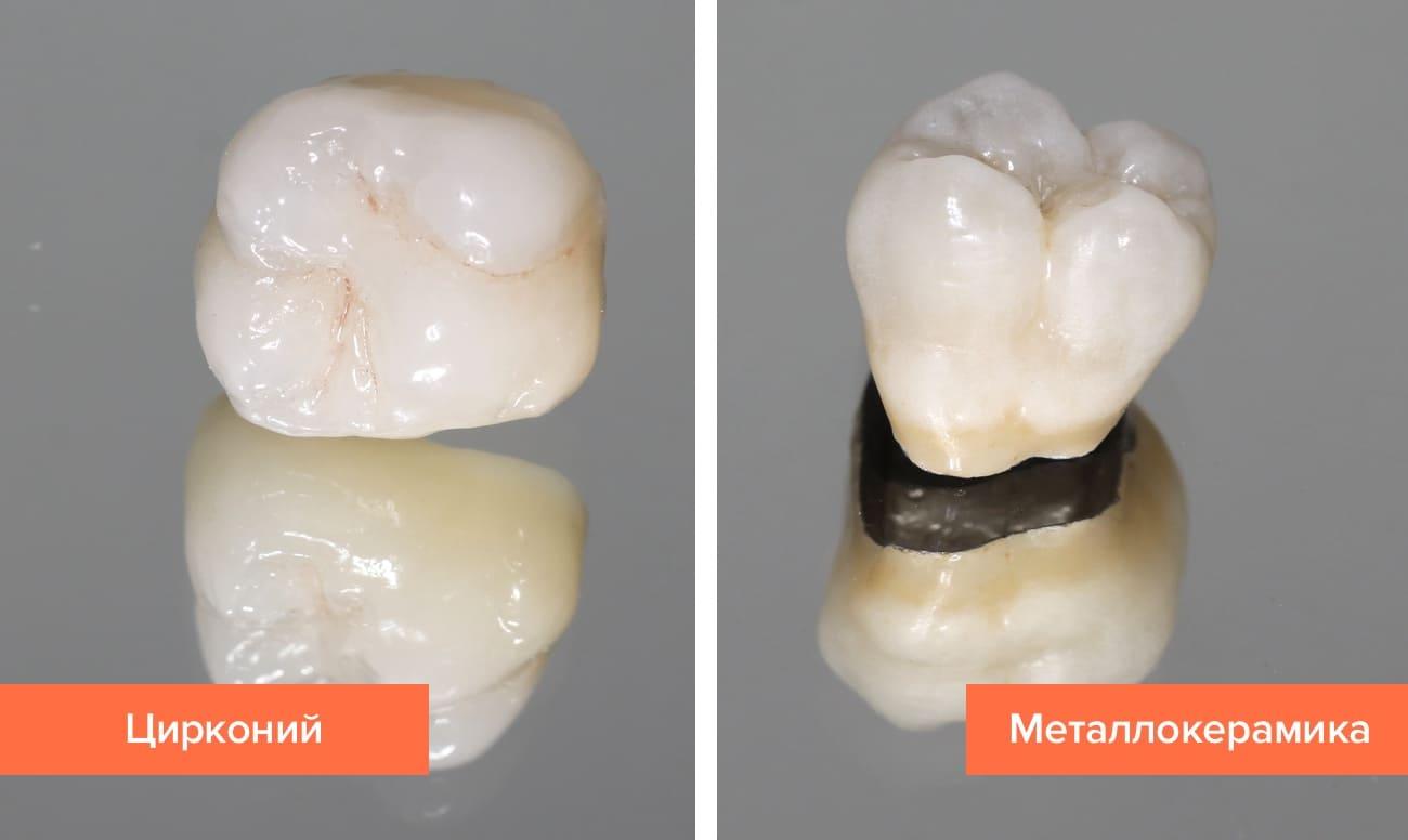 Фото коронок из циркония и металлокерамики