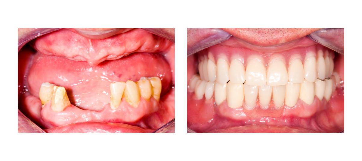 Фото пациента до и после установки протеза Квадротти