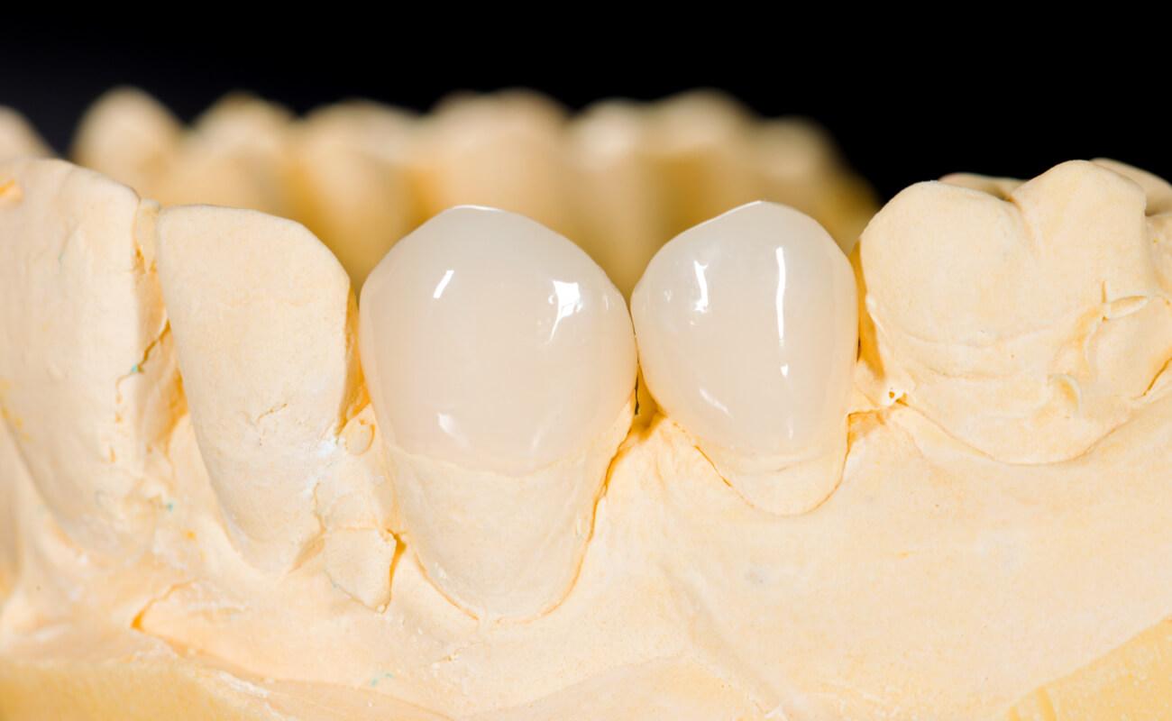 Фото зубных вкладок из керамики