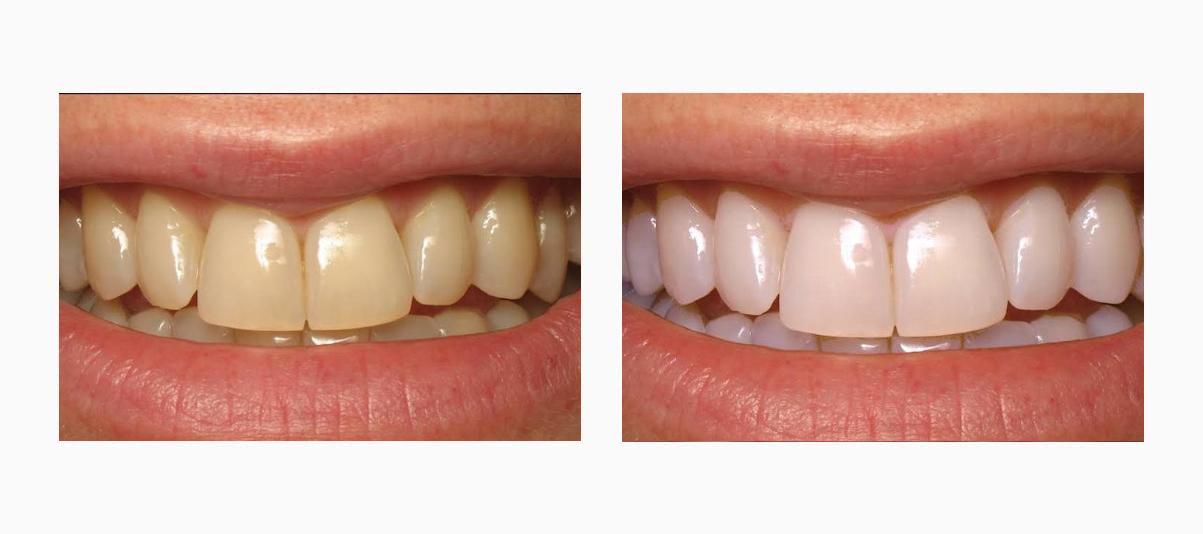 Фото пациента До и После отбеливания Amazing White