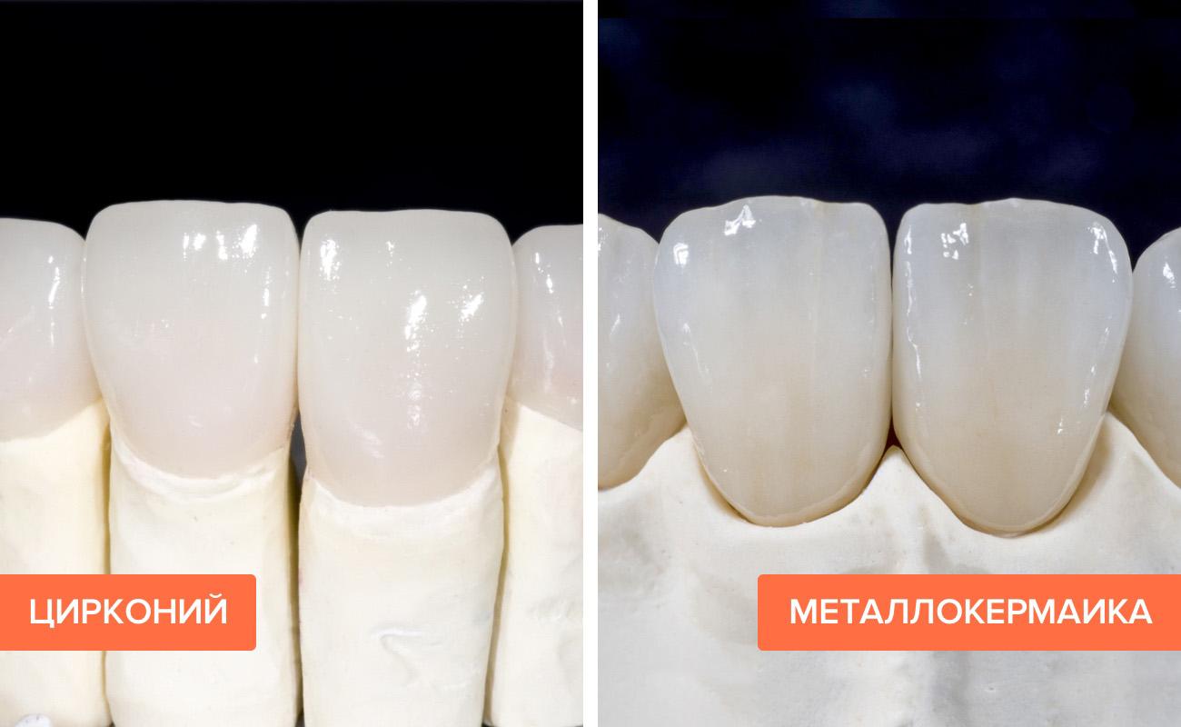 Фото циркония и металлокерамики на зубах