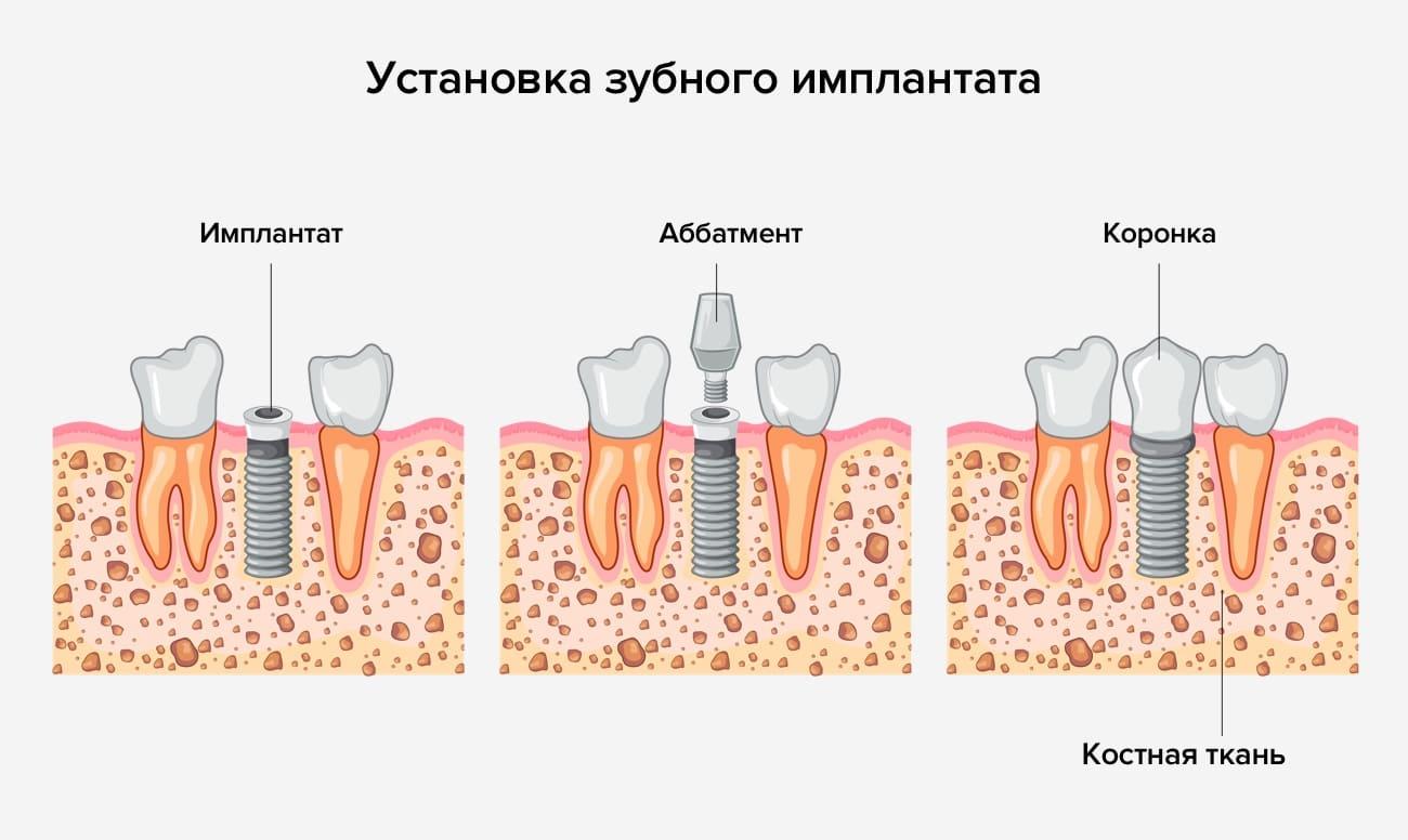 Установка зубного имплантата в картинках
