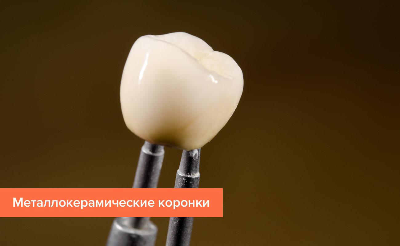 Фото коронки из металлокерамики