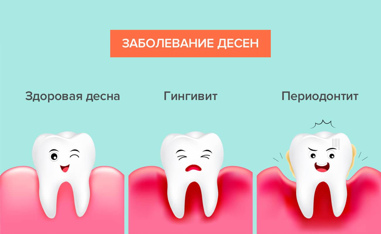 Этапы заболевания десен в картинках