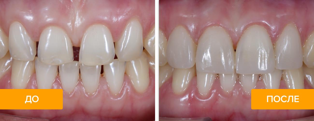 Фото зубов до и после лечения диастемы