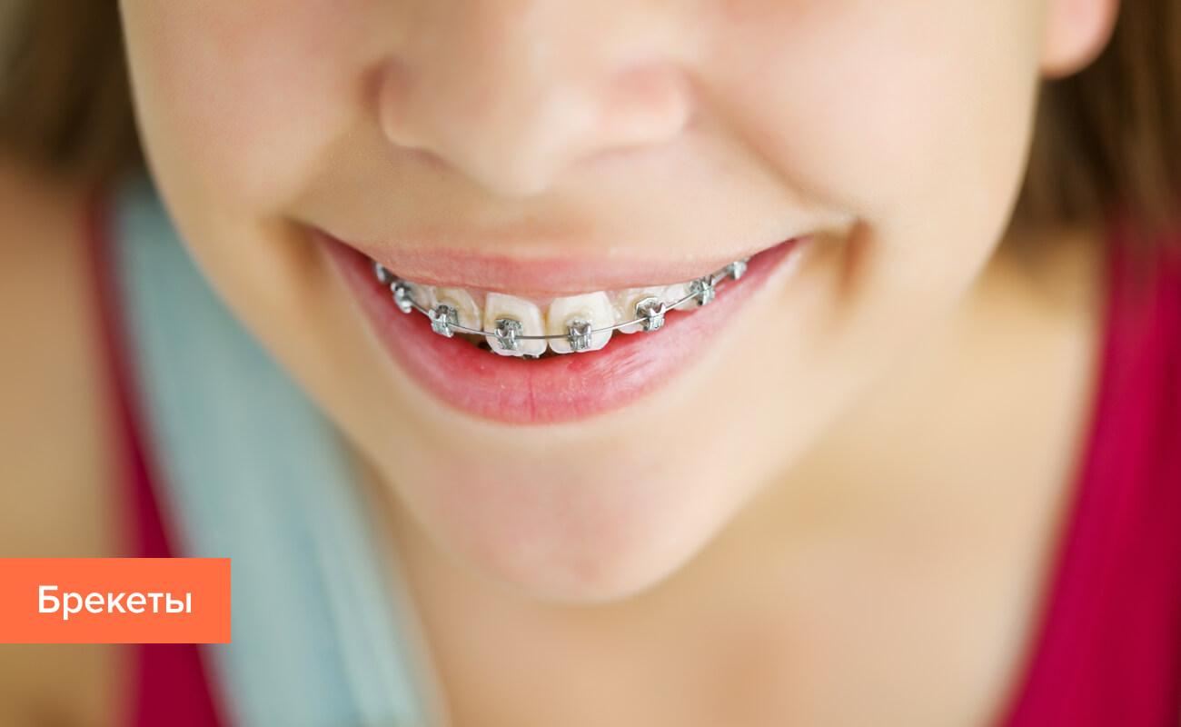 Фото брекетов на зубах ребенка