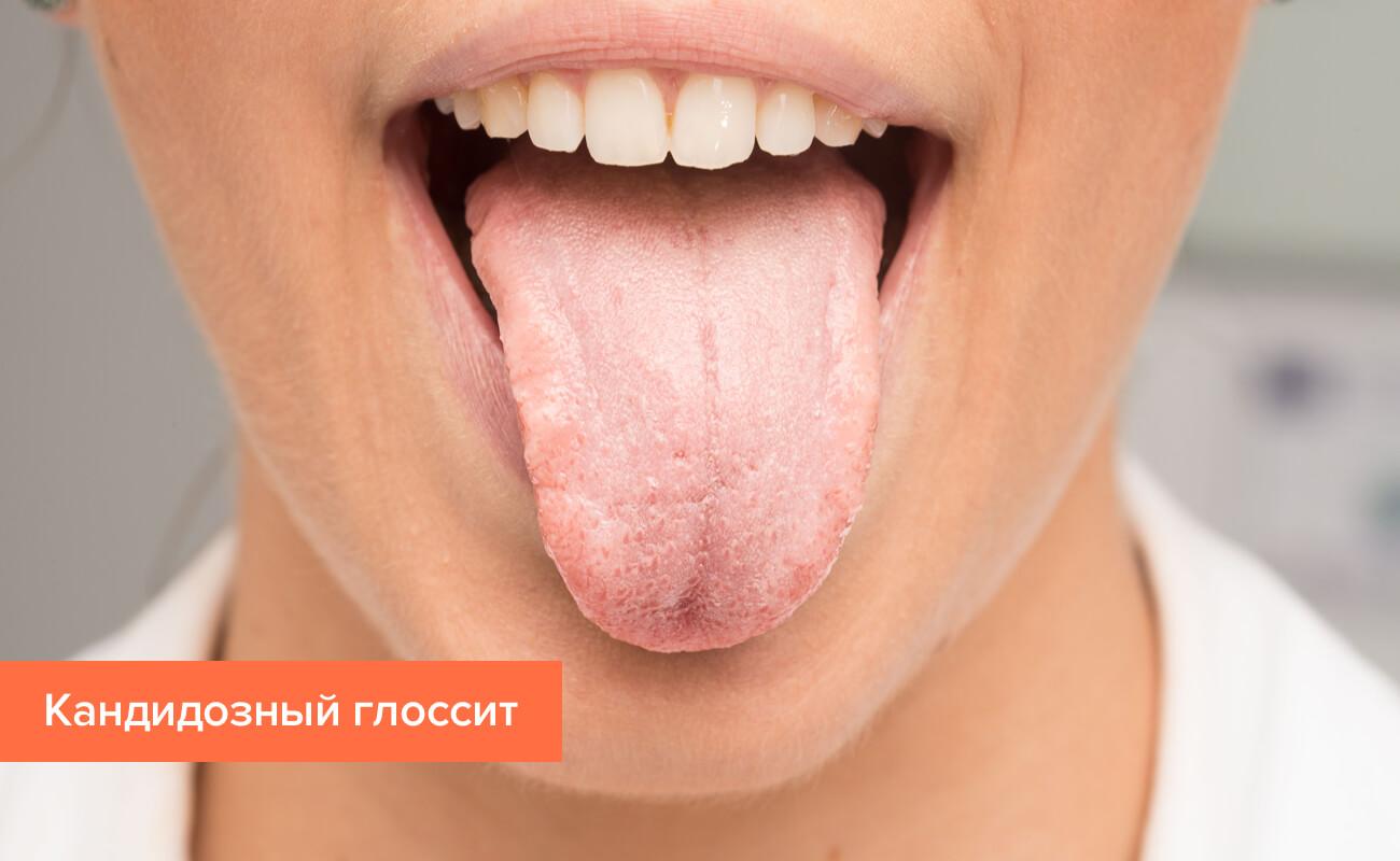 Лечение глоссита языка в домашних условиях