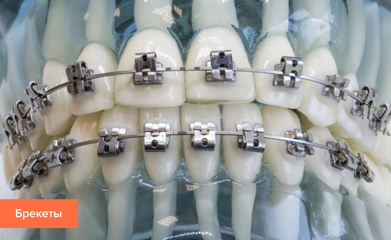 Фото брекетов для выравнивания зубов