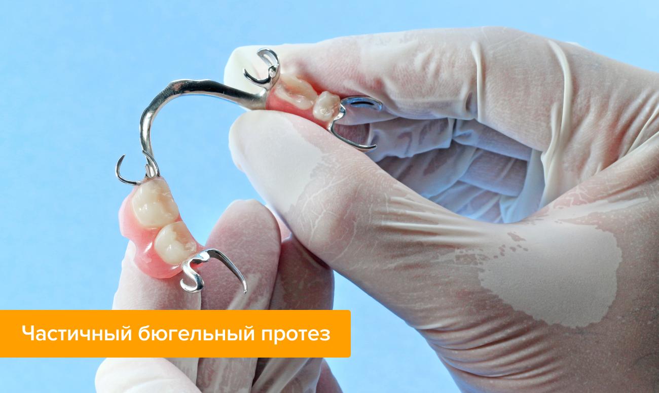 Фото частичного бюгельного протеза