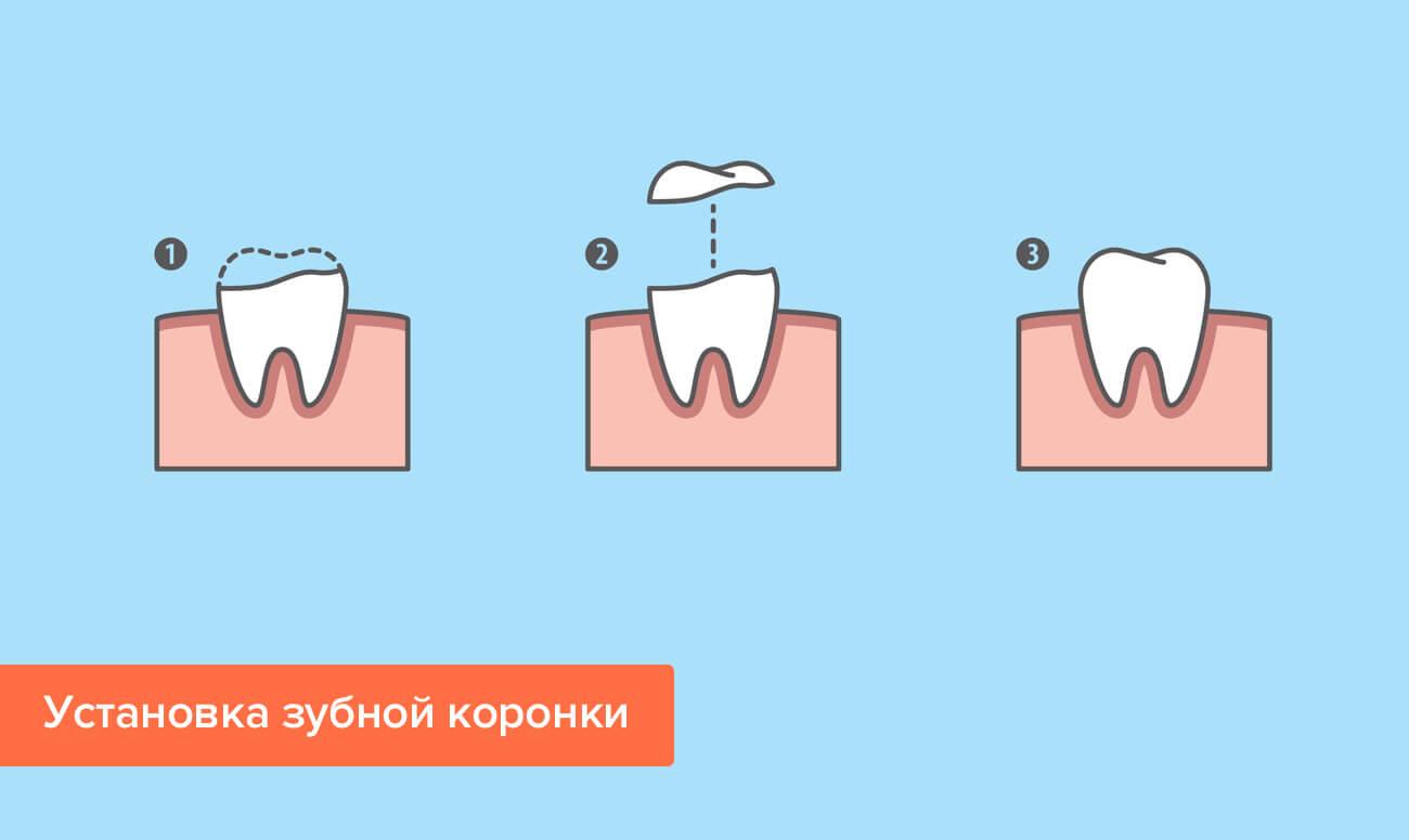 Установка зубной коронки в картинках