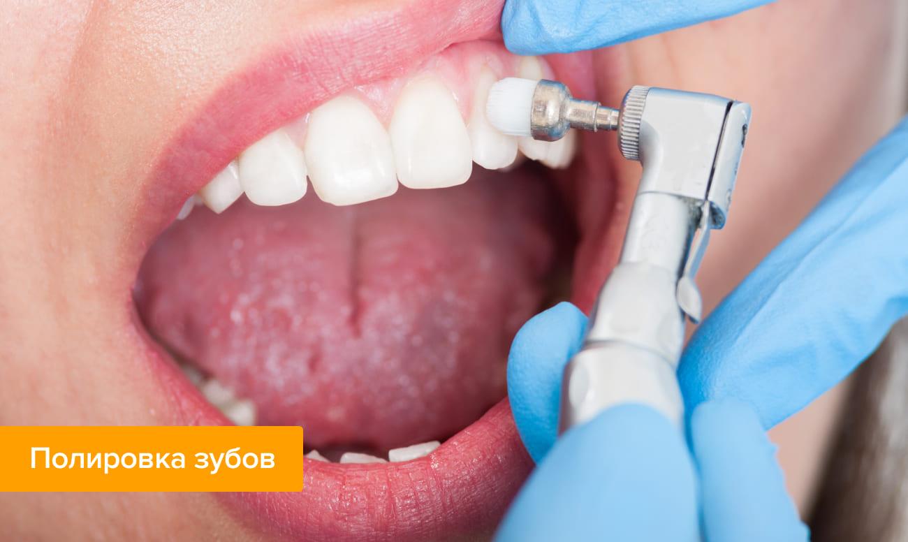 Фото процедуры полировки зубов