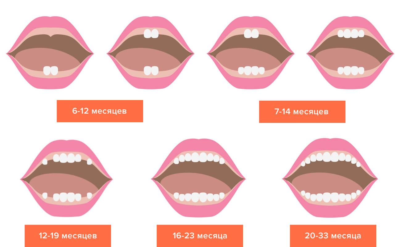 Замена молочных зубов у детей схема фото 510