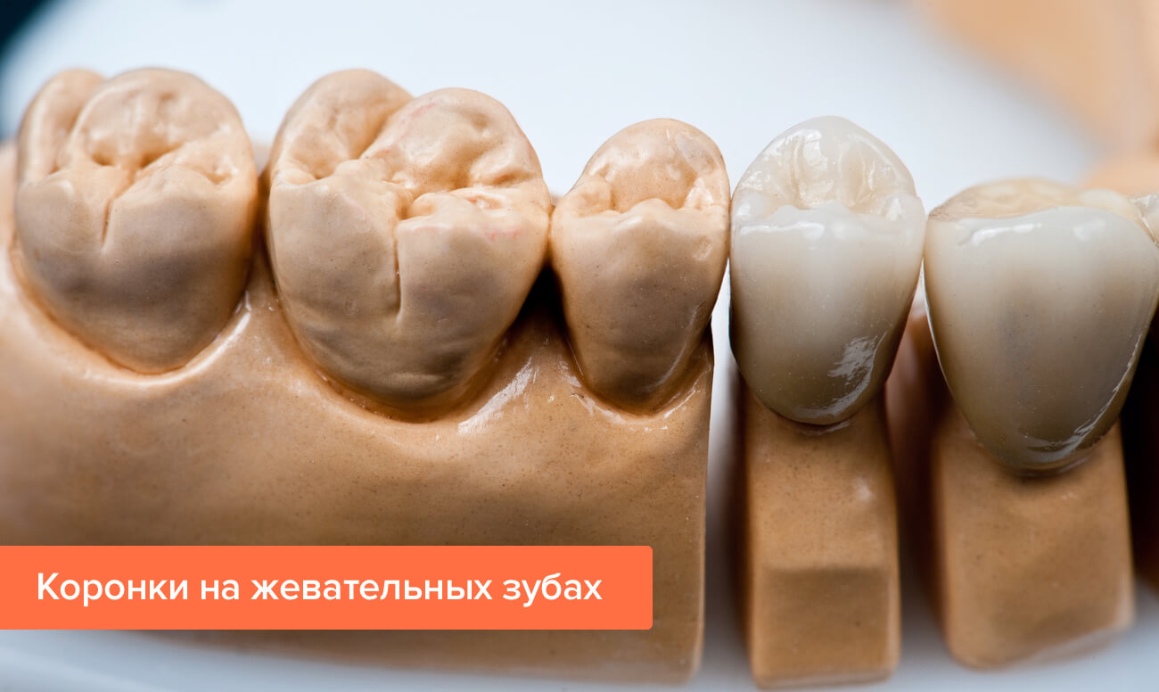 Фото коронок на жевательных зубах