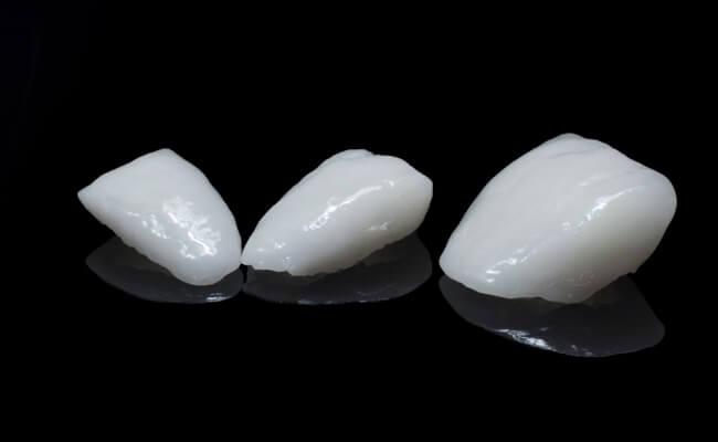 накладки на зубы вместо коронок виниры