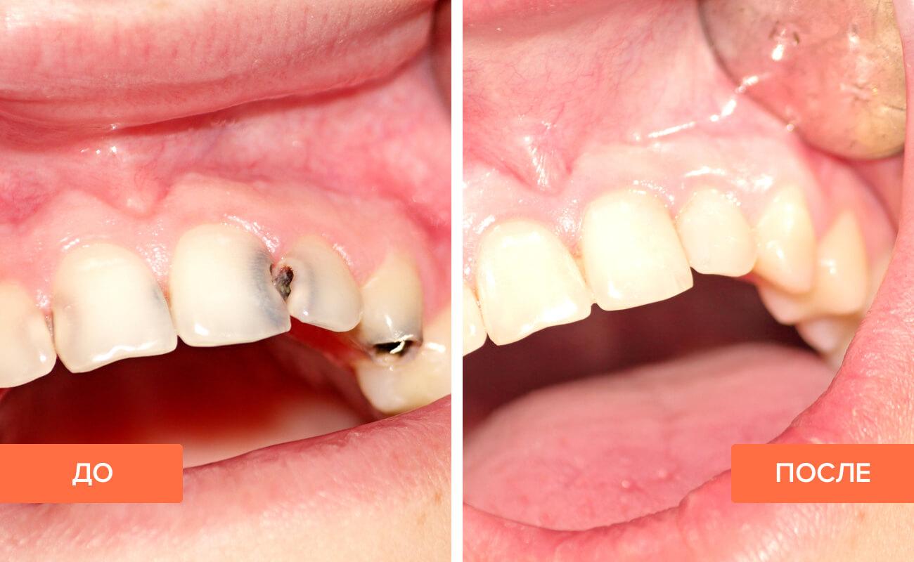 Кариес на передних зубах — что делать, как лечат, стадии, фото ...