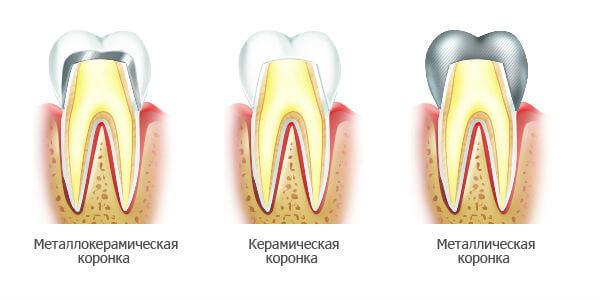 Виды зубных коронок: металлокерамическая, керамическая, металлическая