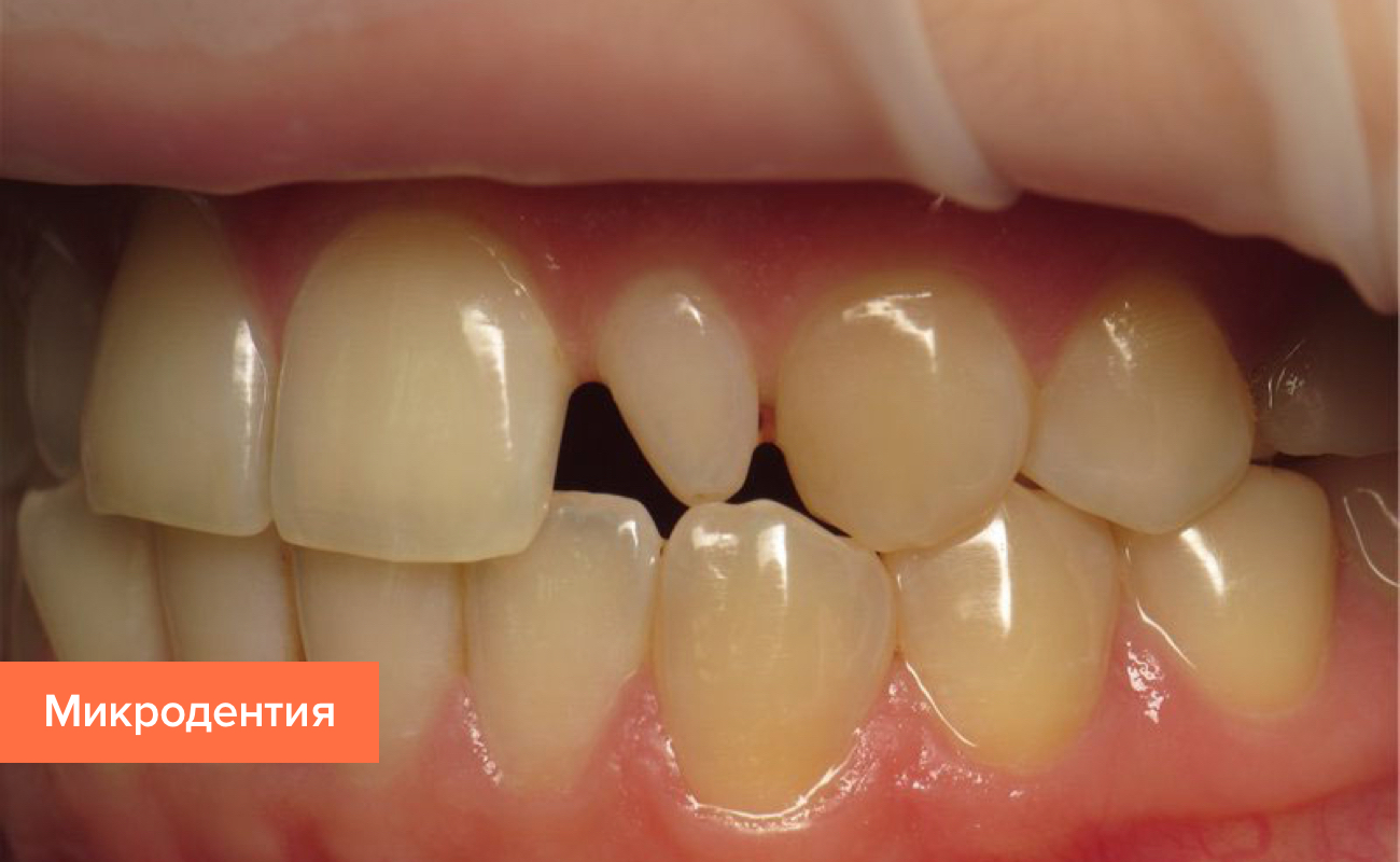 Фото микродентии зуба