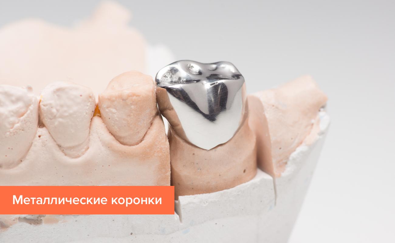 Фото коронки на зуб из металла
