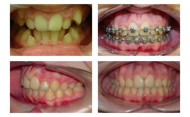 Фото пациента на различных этапах лечения беретами Damon