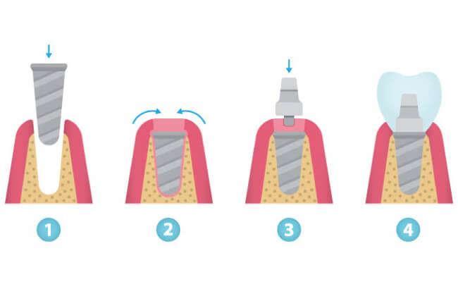 Установка коронки на имплант в картинках