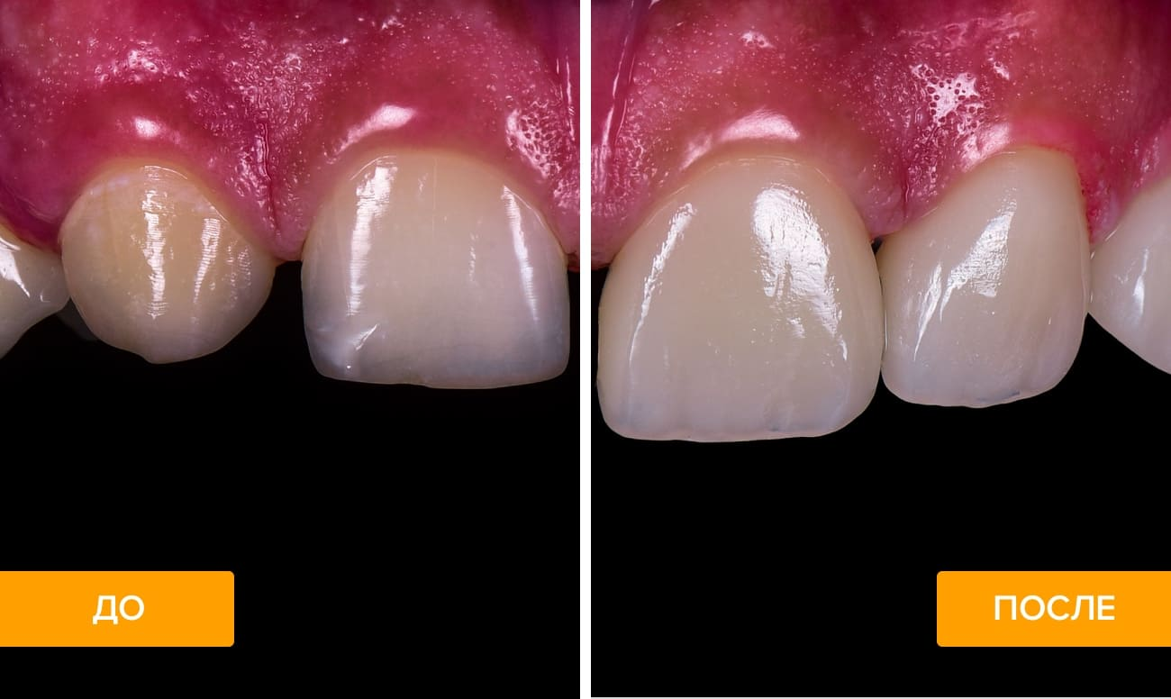 Фото пациента до и после наращивания зубов
