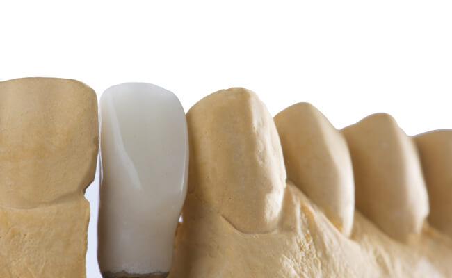 Фото керамических коронок на имплантах