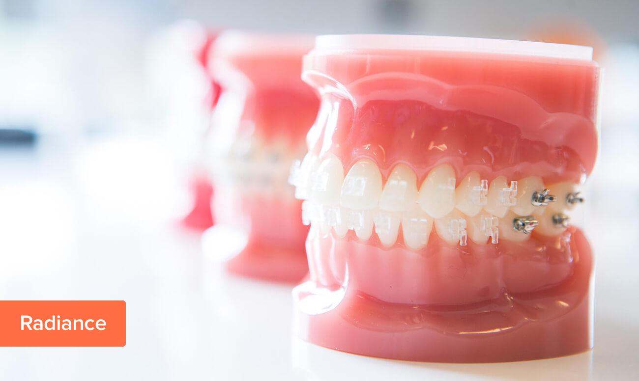 Фото сапфировых брекетов Radiance от American Orthodontics