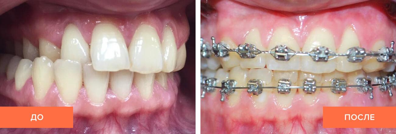 Фото пациента до и после исправления перекрестного прикуса брекетами