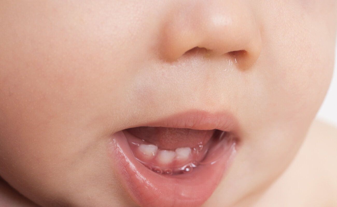 Фото прорезывания молочных зубов