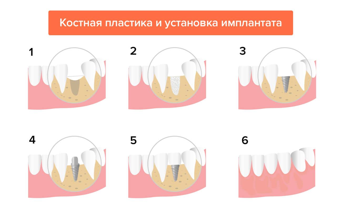 Костная пластика и установка имплантата в картинках