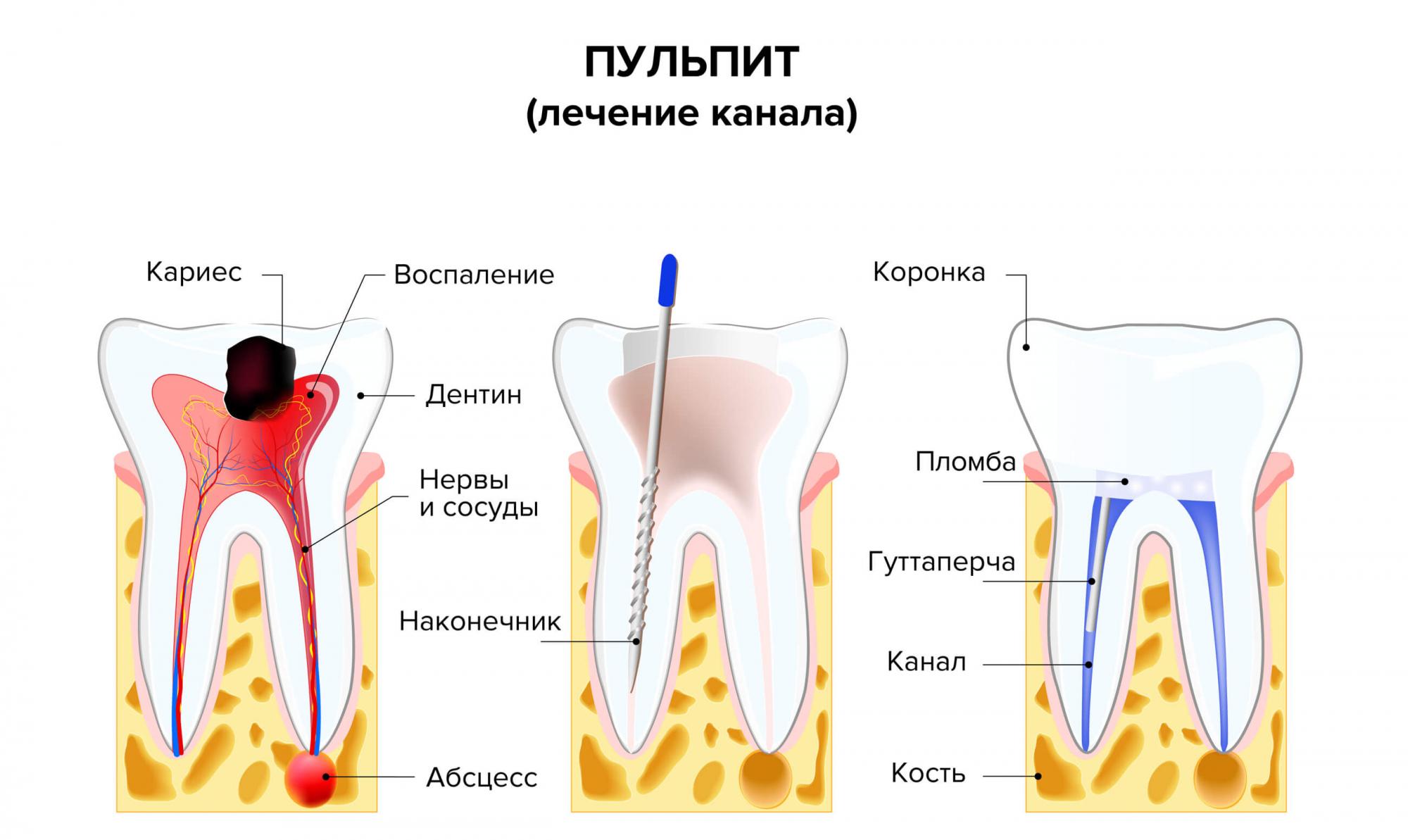 Процесс лечения пульпита в картинках