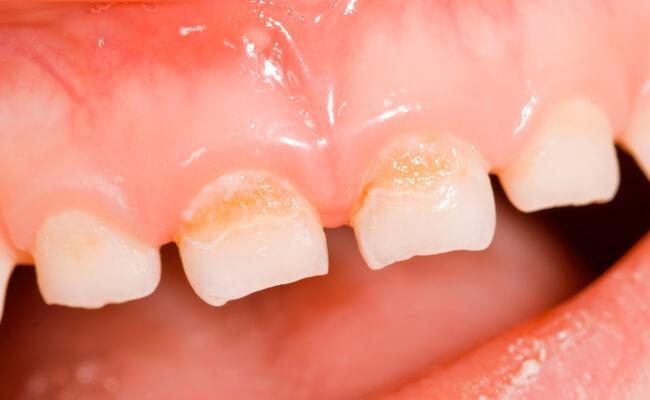 Кариес молочных зубов у детей раннего возраста (фото) и 93