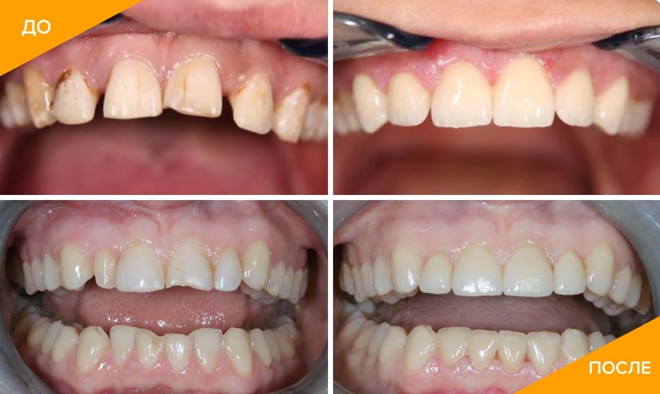Фото до и после установки виниров в стоматологии Стомартстудио Leonardo
