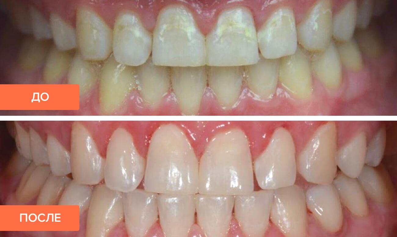 Фото пациента до и после лечения кариеса без сверления