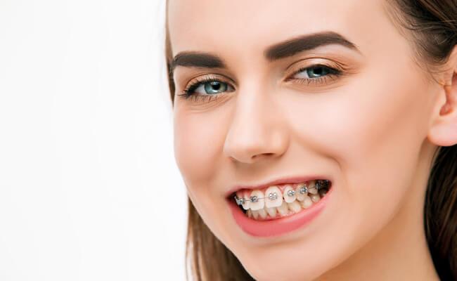 Фото брекетов установленных на одной челюсти