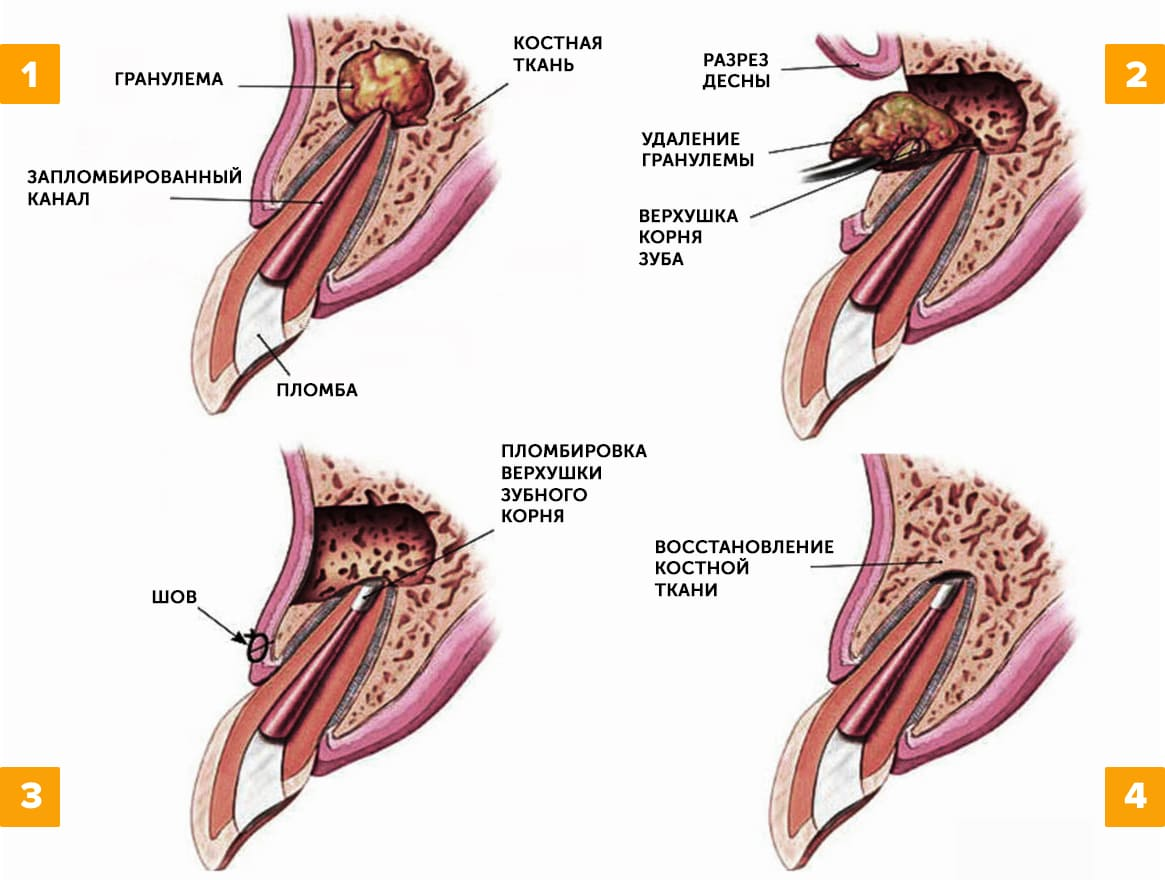 Удаление гранулемы зуба в картинках