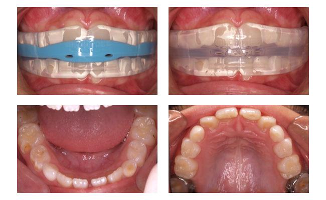 Фото до и после лечения трейнерами