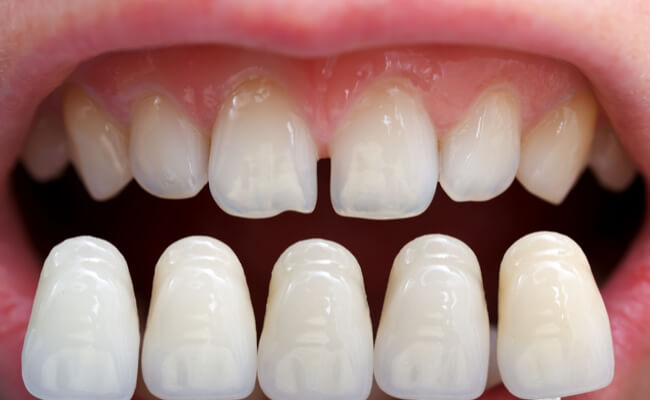 Фото эстетических накладок на зубы