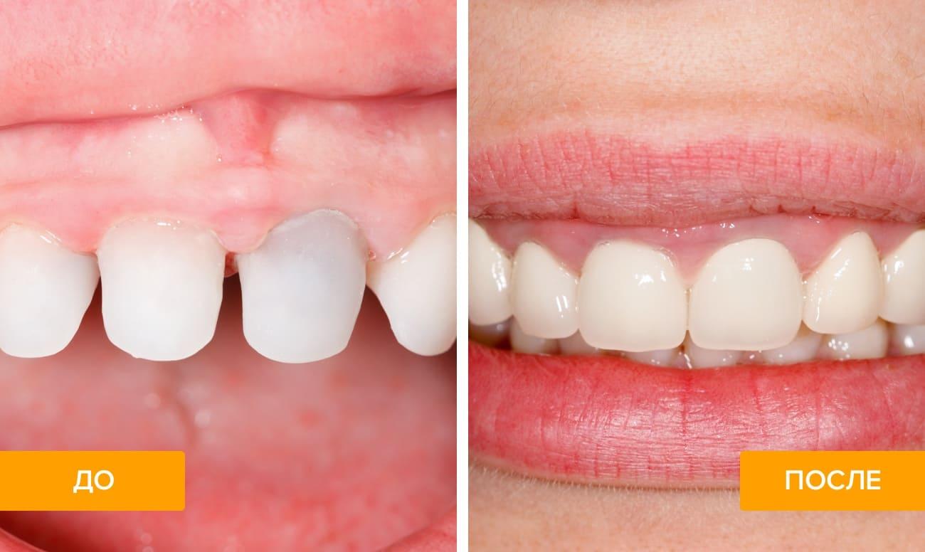 Фото зубов до и после установки коронок из диоксида циркония