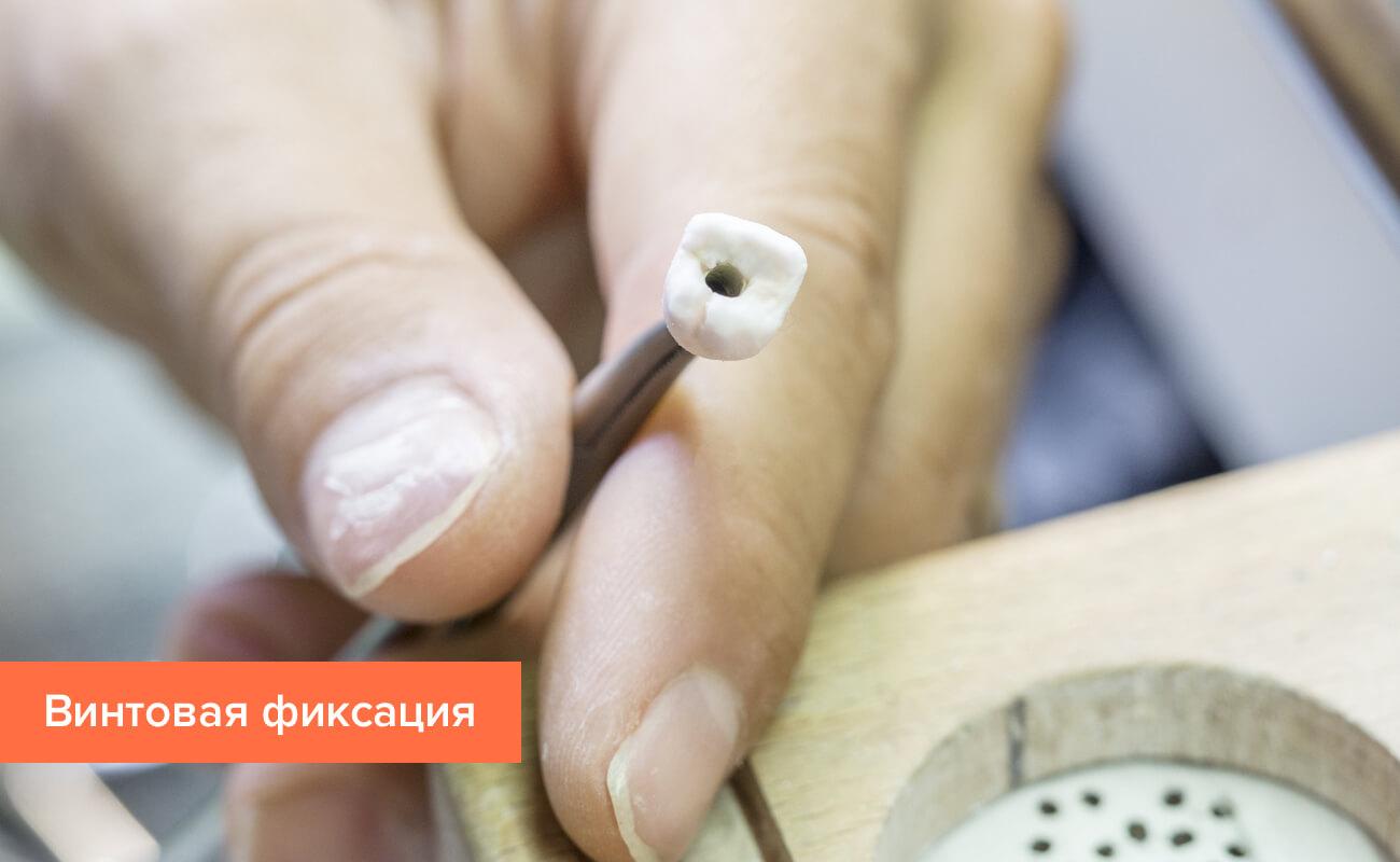 Фото металлокерамической коронки с винтовой фиксацией