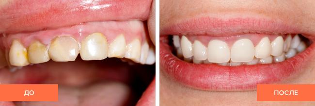 Фото пациента до и после реставрации зубов композитом