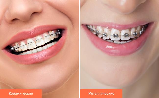 Фото керамических и металлических брекетов на зубах