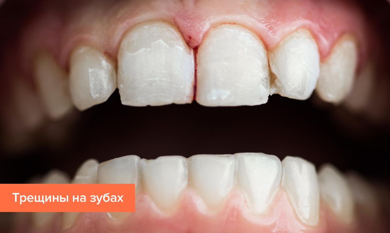 Ч рная маленькая дырка на переднем зубе