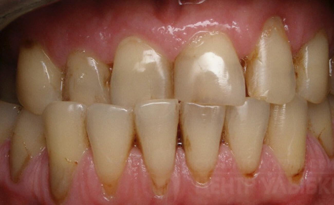 Фото перекрестного прикуса зубов