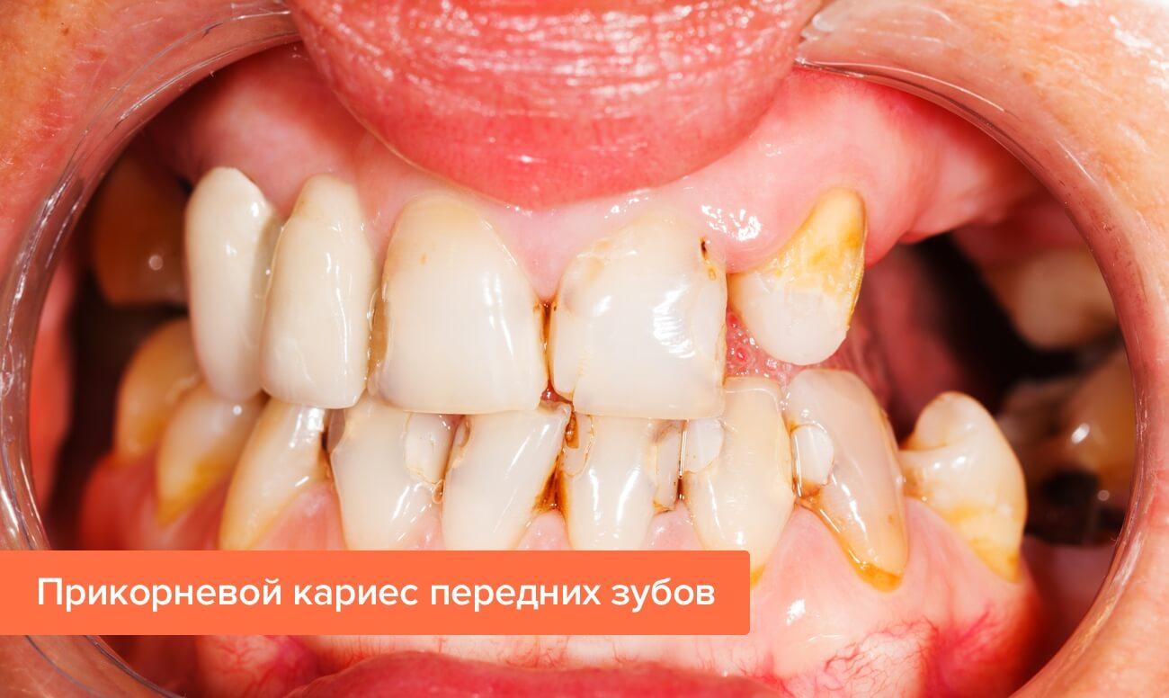Фото прикорневого кариеса передних зубов