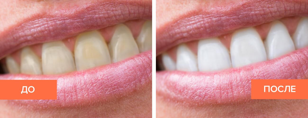 Фото пациента до и после отбеливания