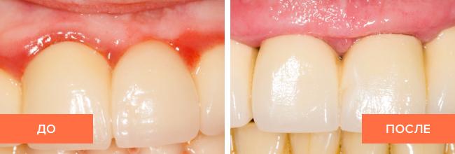Фото пациента до и после лечения гингивита