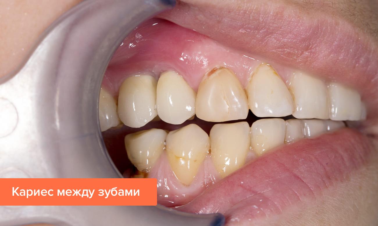 Фото кариеса между зубами