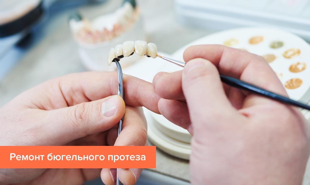 Съёмный зубной протез своими руками фото 51